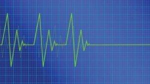 _54700638_raw_heartbeatmonitor_thinkstock